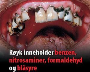 advarsel-sigaretter